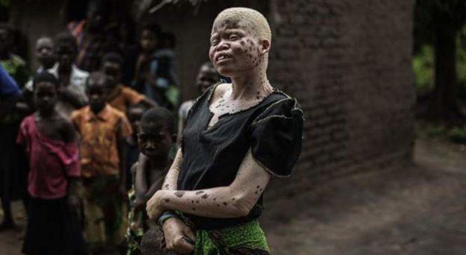 Abafite ubumuga bw'uruhu bariyamamariza kuyobora Malawi