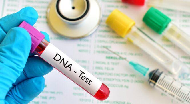 Ibiciro byo gupimisha DNA byagabanutseho 50%